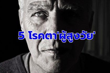 รูปข่าว '5โรคตา'ผู้สูงวัย ปล่อยทิ้งเสี่ยงตาบอด แนะตรวจปีละครั้ง