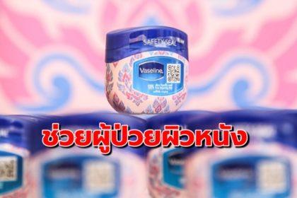 รูปข่าว 'วาสลีน' ร่วม 'สภากาชาดไทย' ช่วยผู้ประสบปัญหาผิวหนัง 'พื้นที่ห่างไกล'