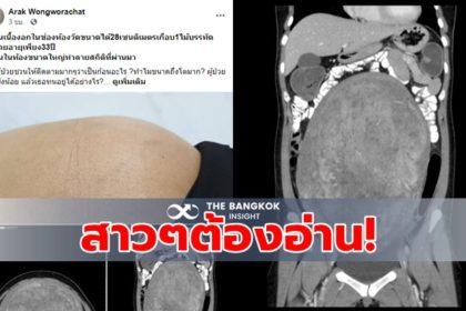 รูปข่าว ต้องอ่าน!! อุทาหรณ์สาวท้องโตผิดปกติ แต่ไม่กล้าไปพบหมอ