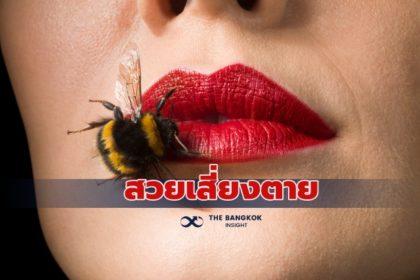 รูปข่าว สวย 'เสี่ยงตาย' แพทย์เตือนภัย ให้ ผึ้งต่อยปาก หวังเป็นรูปกระจับ อาจถึงเสียชีวิต