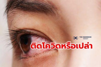 รูปข่าว 'ตาแดง-คันตา-น้ำตาไหล' ติดโควิดหรือเปล่า! จักษุแพทย์ แนะวิธีสังเกตอาการ