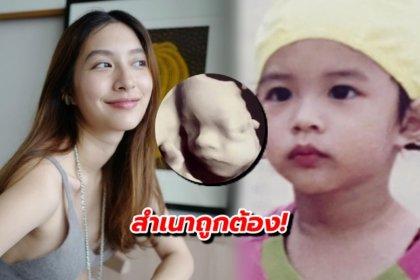 รูปข่าว สำเนาถูกต้อง! มิว นิษฐา เทียบภาพอัลตราซาวด์ลูกสาว VS ภาพตัวเองตอนเด็ก ลูกแม่ชัด ๆ