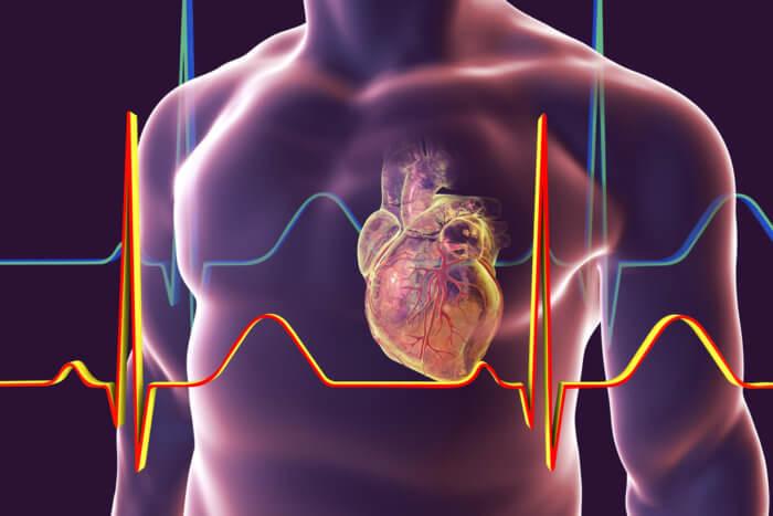 กล้ามเนื้อหัวใจอักเสบ