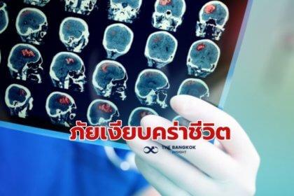 รูปข่าว ระวัง มะเร็งสมอง ภัยเงียบคร่าชีวิต สังเกตอาการได้ด้วยตัวเอง